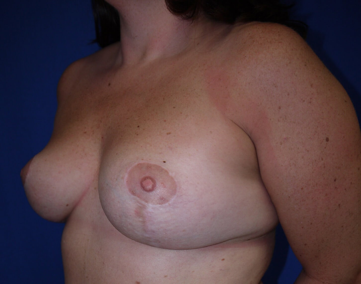 Breast Lift After - left oblique view