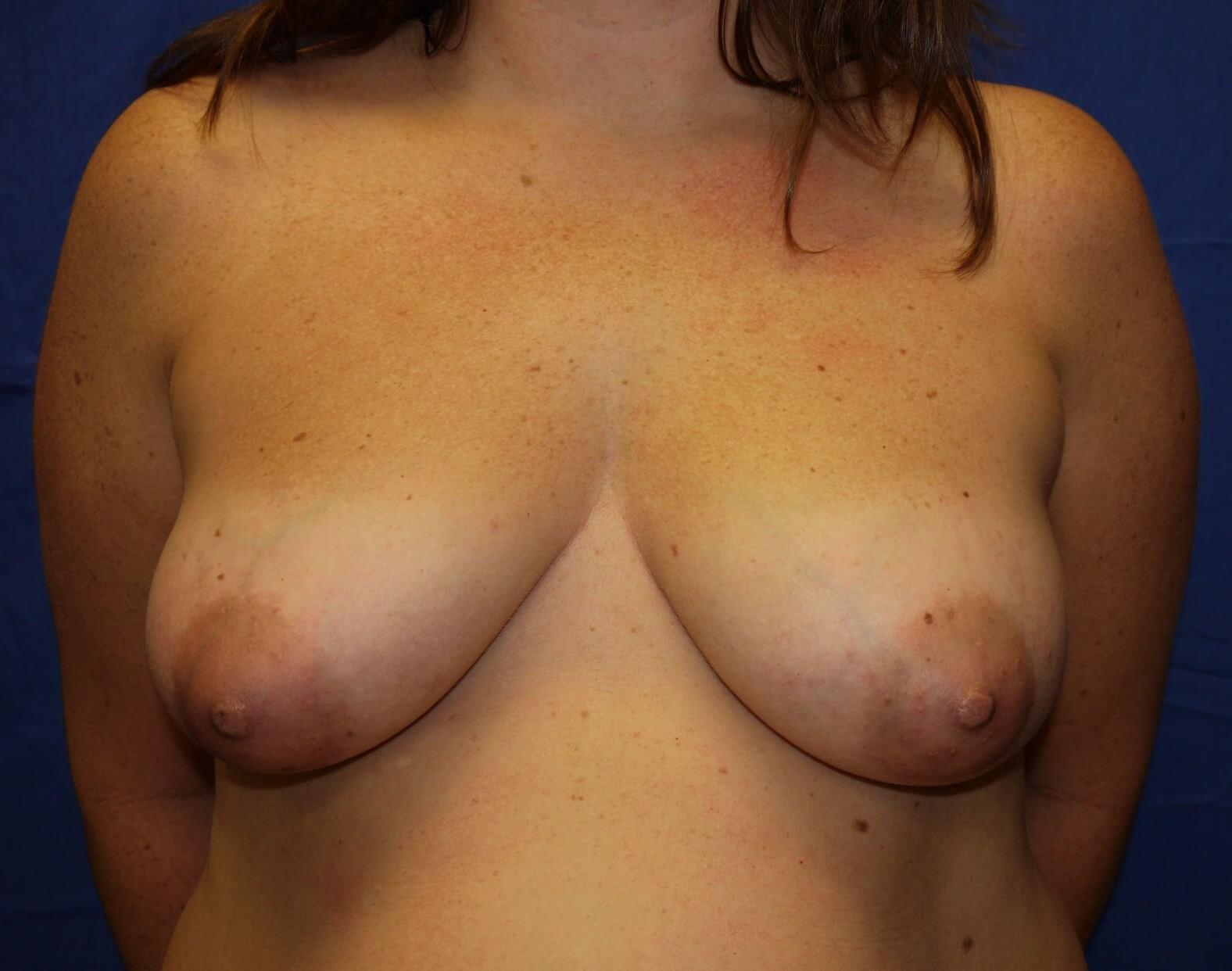 Breast Lift Before - Front View