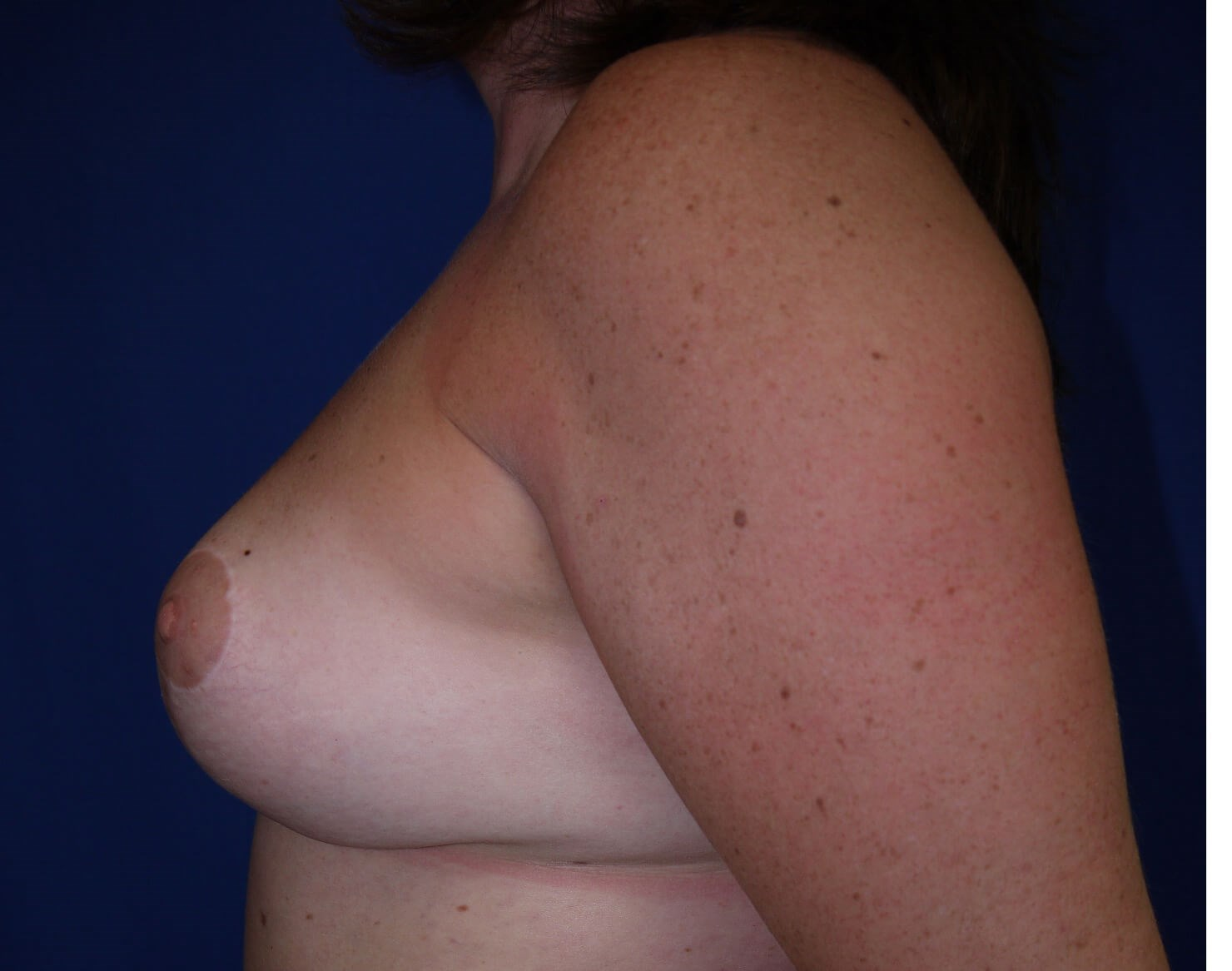 Breast Lift after - Left side view