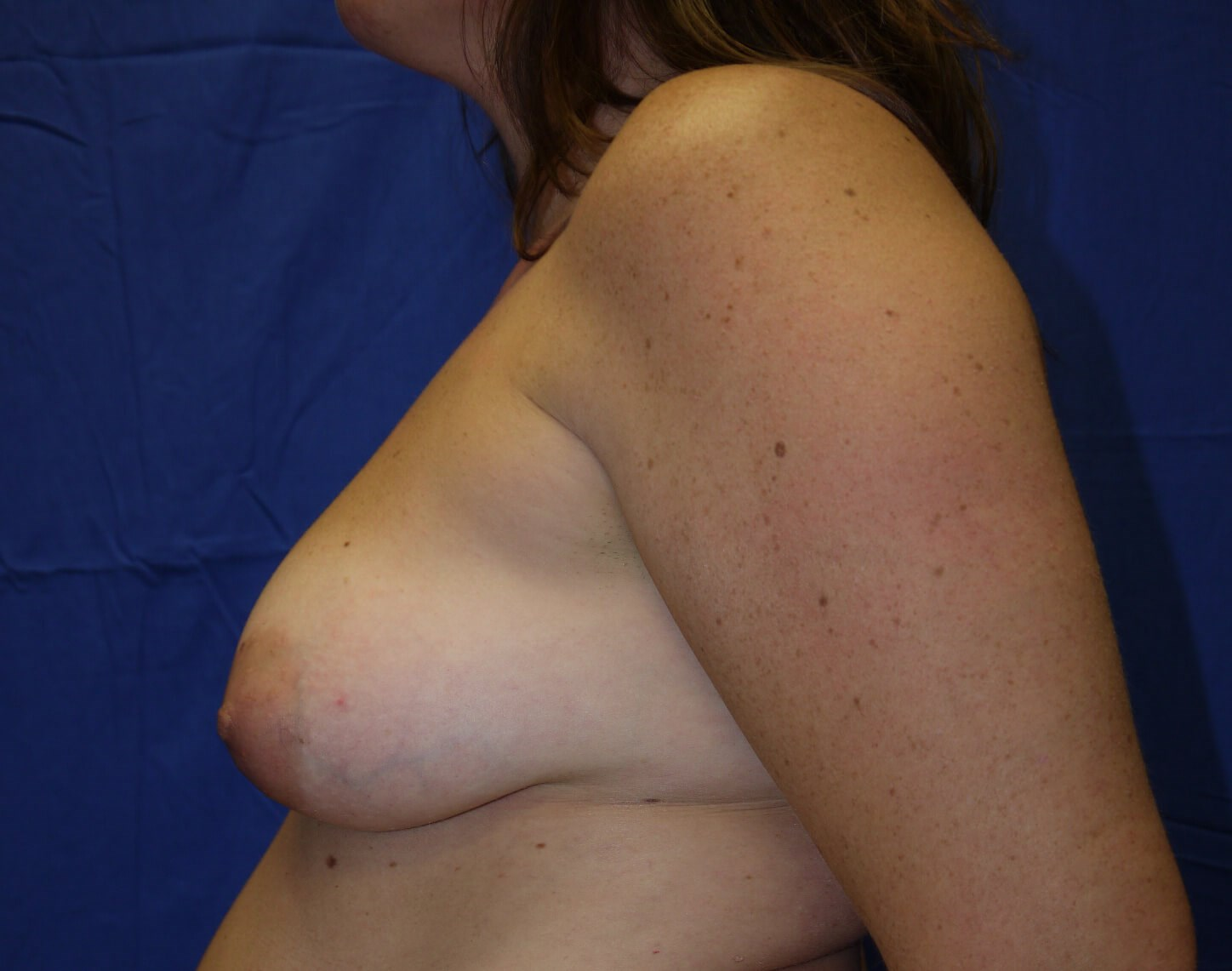 Breast Lift Before - Left side view