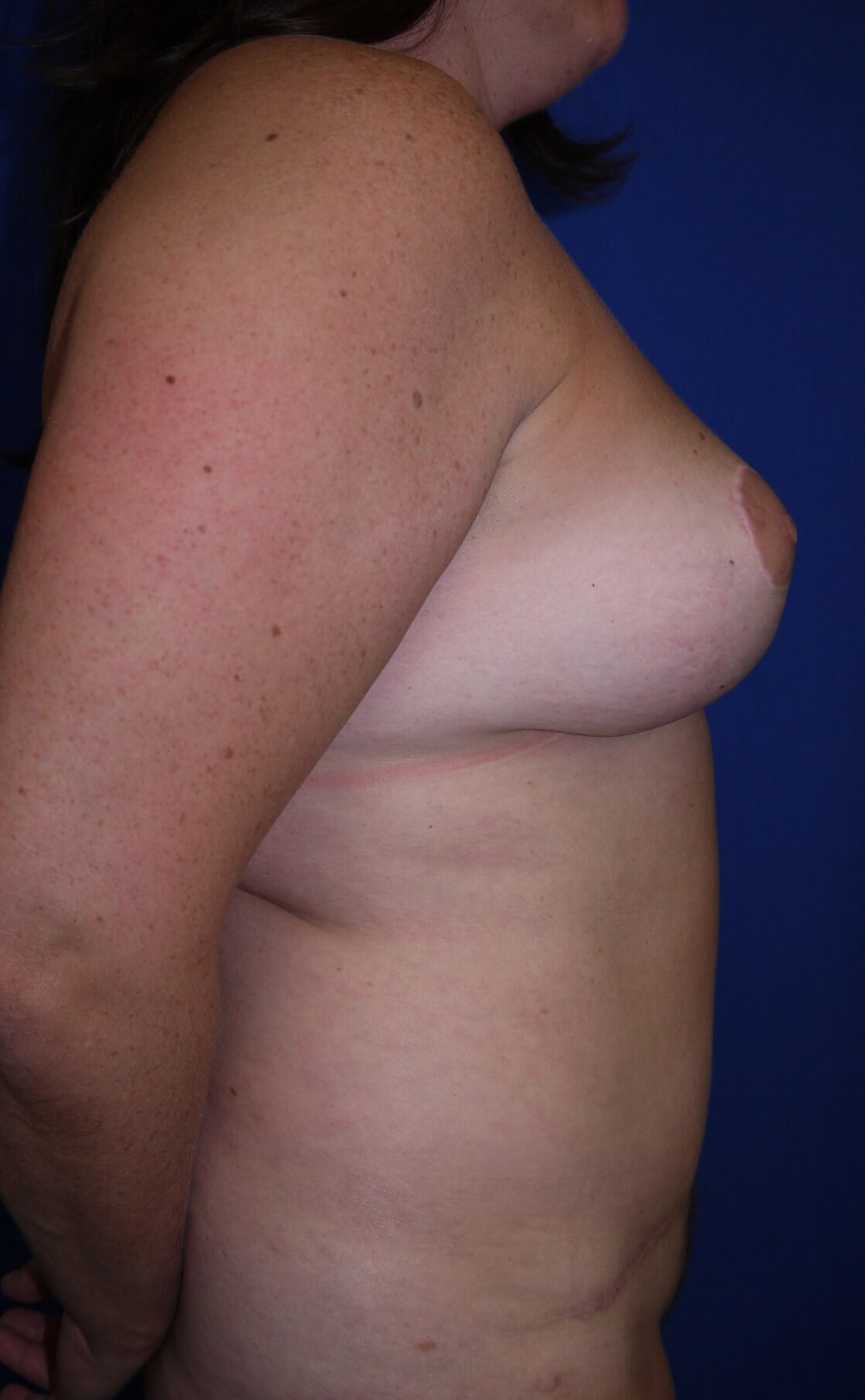 Breast Lift After - Right Side View