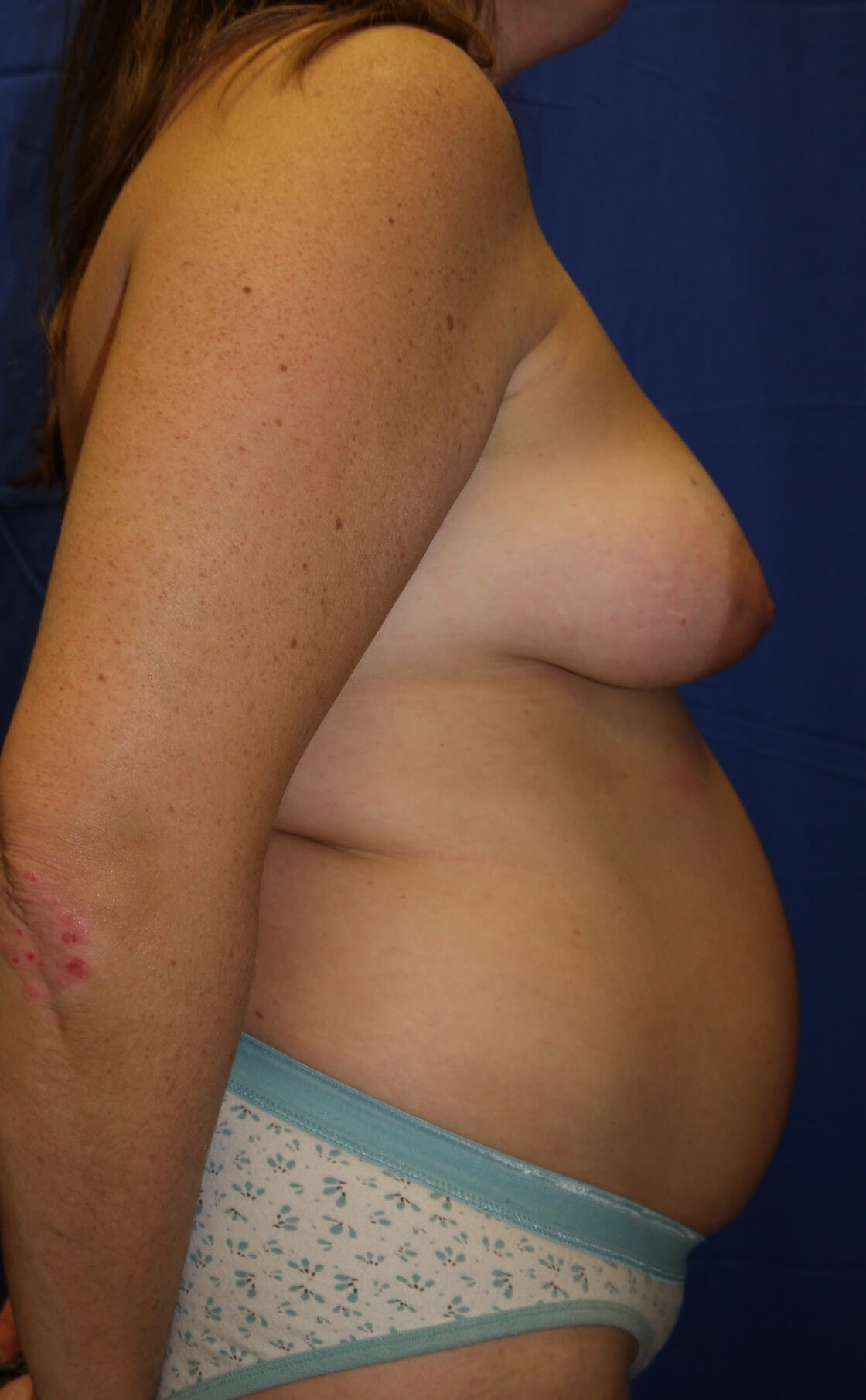 Breast Lift Before - Right Side View