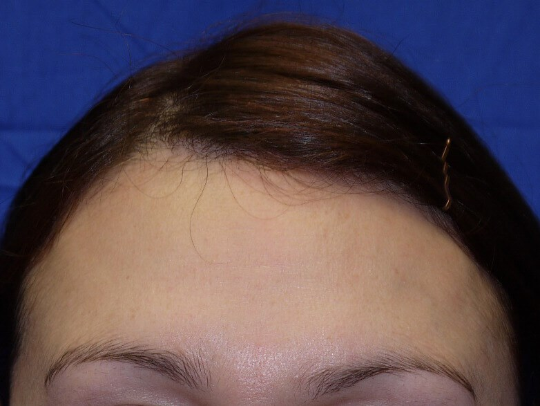 Botox After - Front View