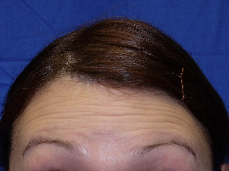 Botox Before - Front View