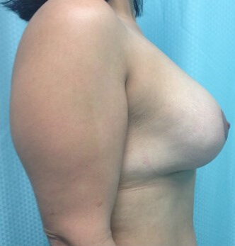 Breast Augmentation After - Right Side