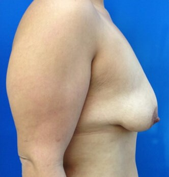Breast Augmentation Before - Right Side