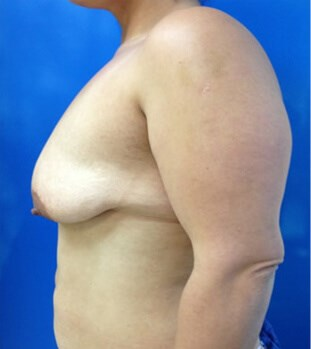 Breast Augmentation Before - Left Side View