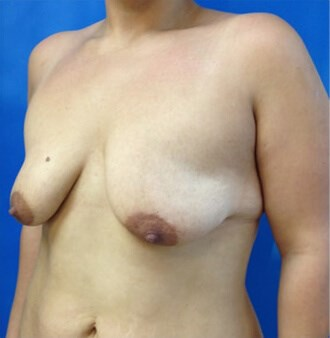 Breast Augmentation Before - Left Oblique View