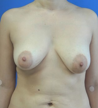 Breast Augmentation Before - Front View