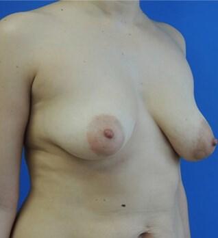 Breast Augmentation Before - Right Oblique View