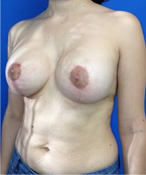 Breast Augmentation After - Left Oblique View