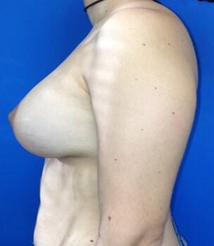 Breast Augmentation After - Left Side