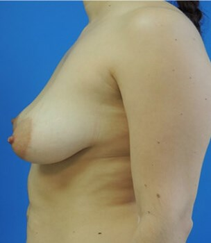 Breast Augmentation Before - Left Side