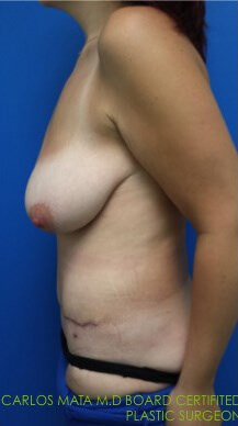 After Tummy Tuck - Left side