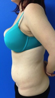 Before Tummy Tuck - Left side