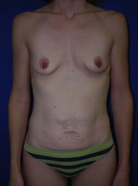before breast augmentation - Front View