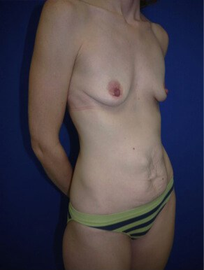 before breast augmentation Right Oblique View - Right Oblique View