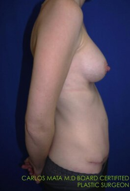 after breast augmentation Right Side - Right Side