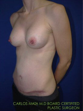 after breast augmentation Left Side View - Left Side View