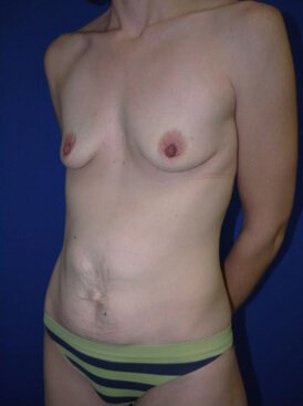 before breast augmentation Left Side View - Left Side View