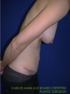 after breast augmentation Divers View - Divers View