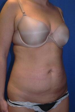 Tummy Tuck Before  - Right Oblique View