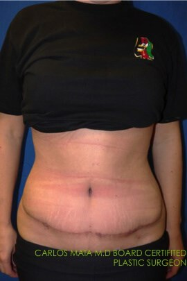 Tummy Tuck After  - Front View