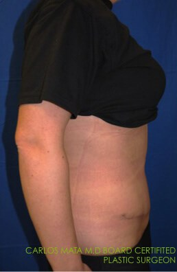 Tummy Tuck After  - Right View