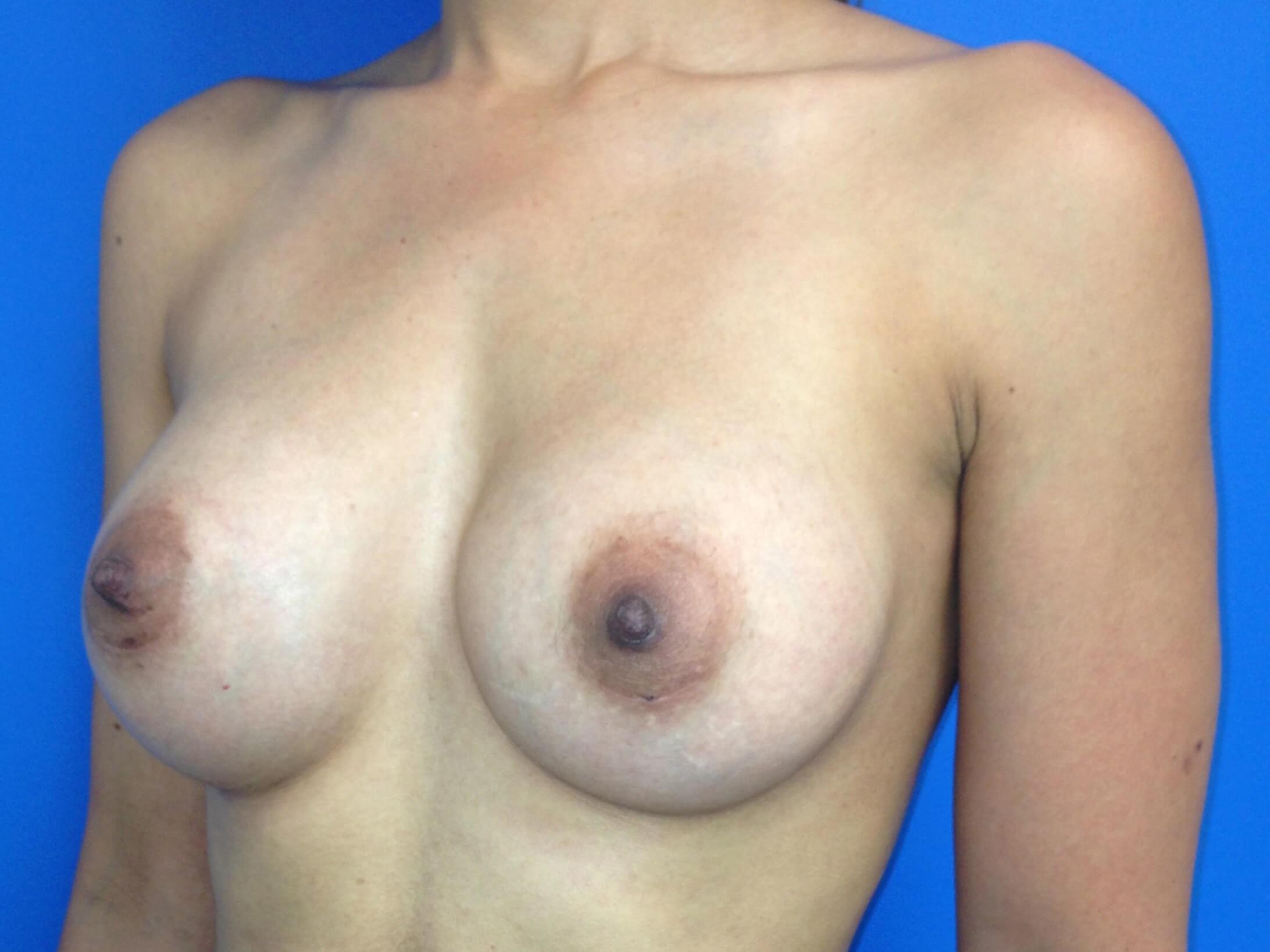 after breast augmentation left oblique view - left oblique view