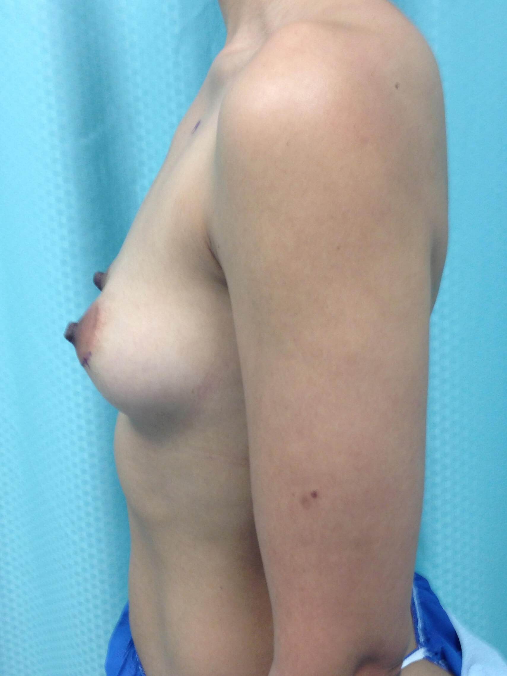 before breast augmentation Left View - Left View