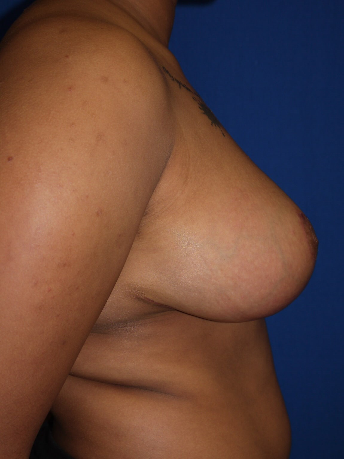 After breast reduction - Right Side - Right Side