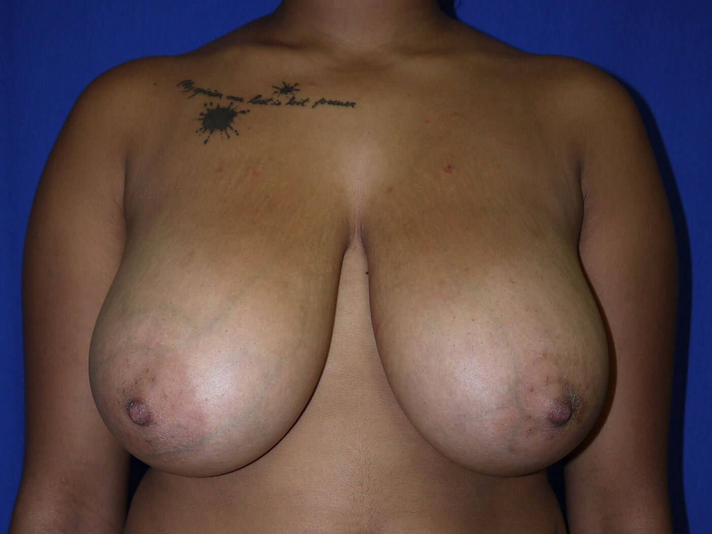 Before breast reduction - Front View