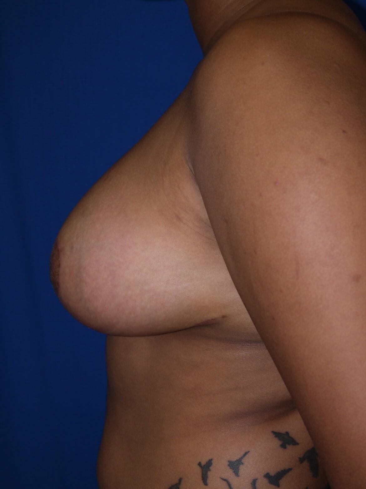 After breast reduction - Left Side - Left Side