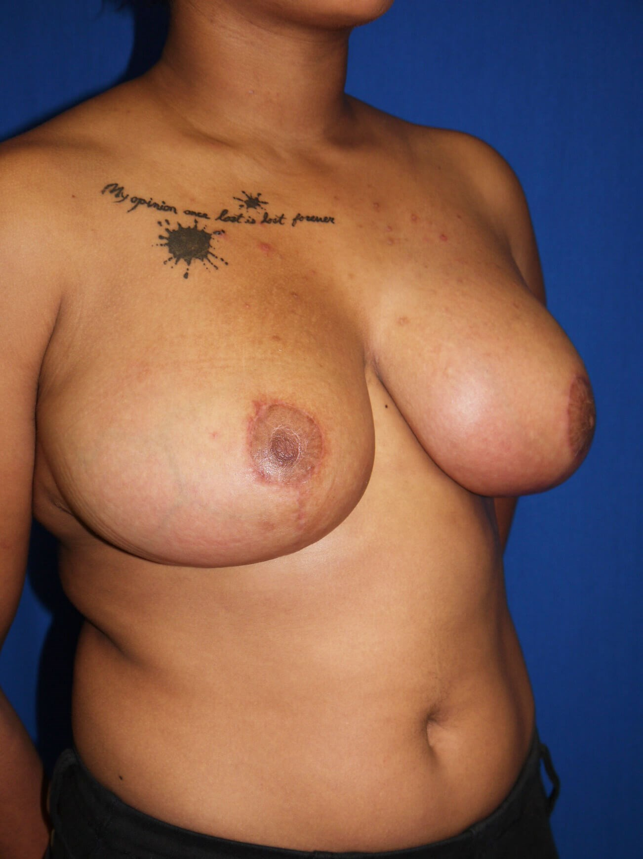 After breast reduction - Right Oblique View - Right Oblique View