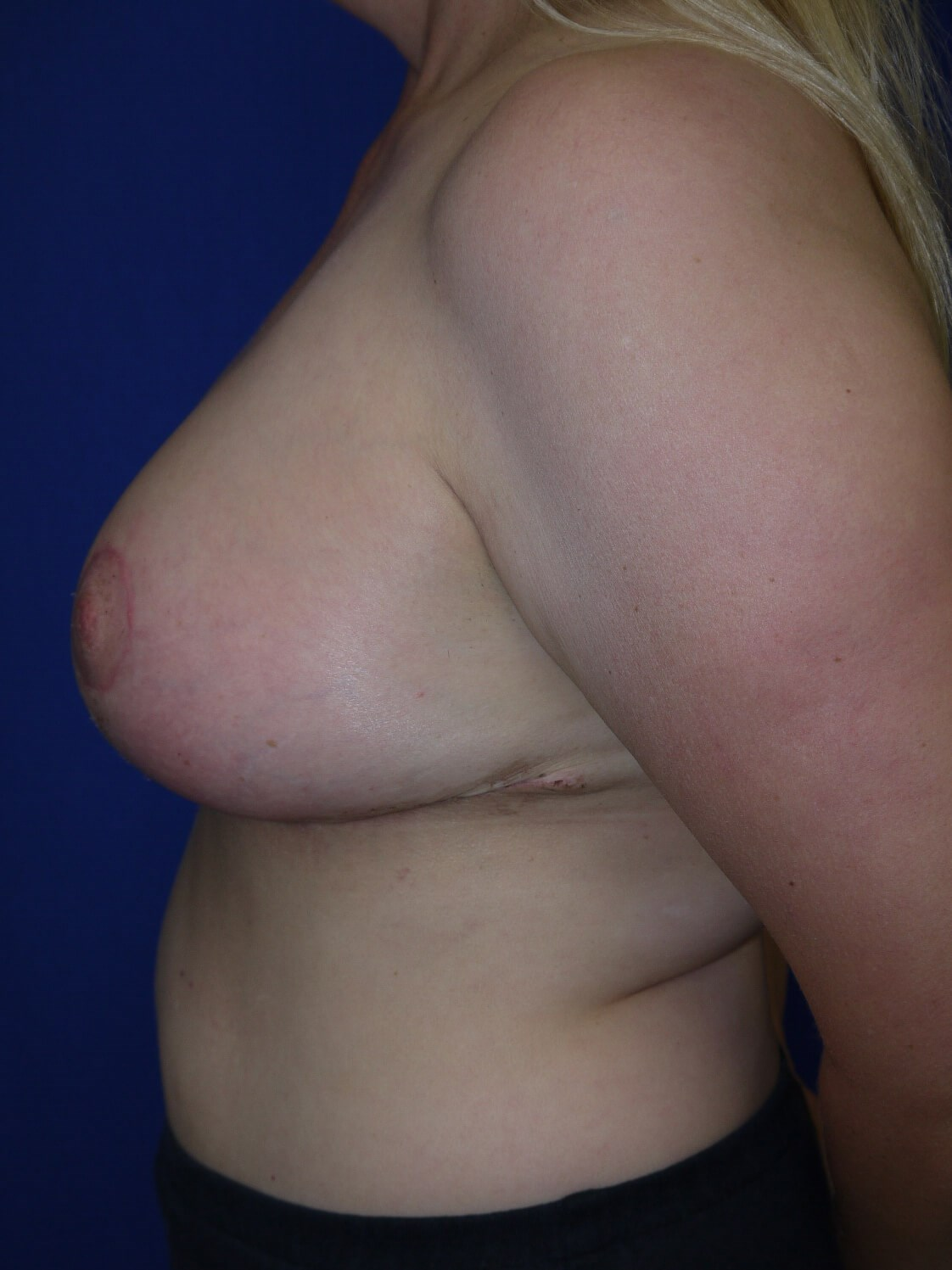 Breast Reduction After - Left Side