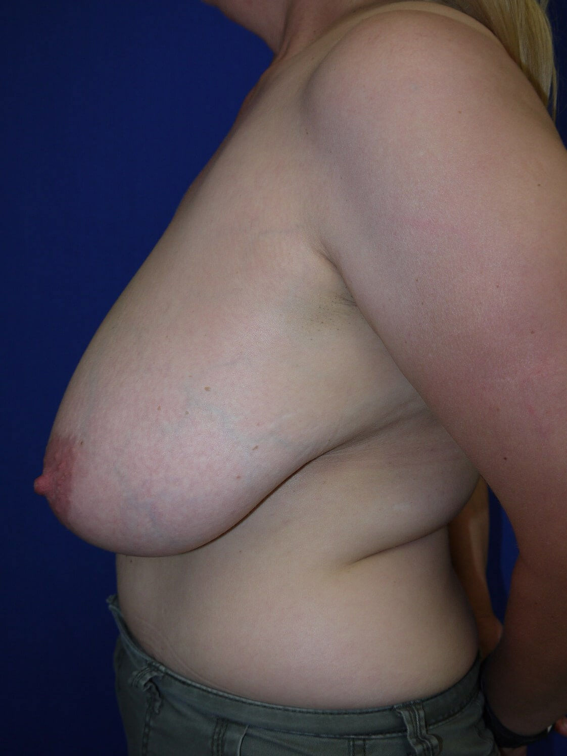 Breast Reduction Before - Left Side