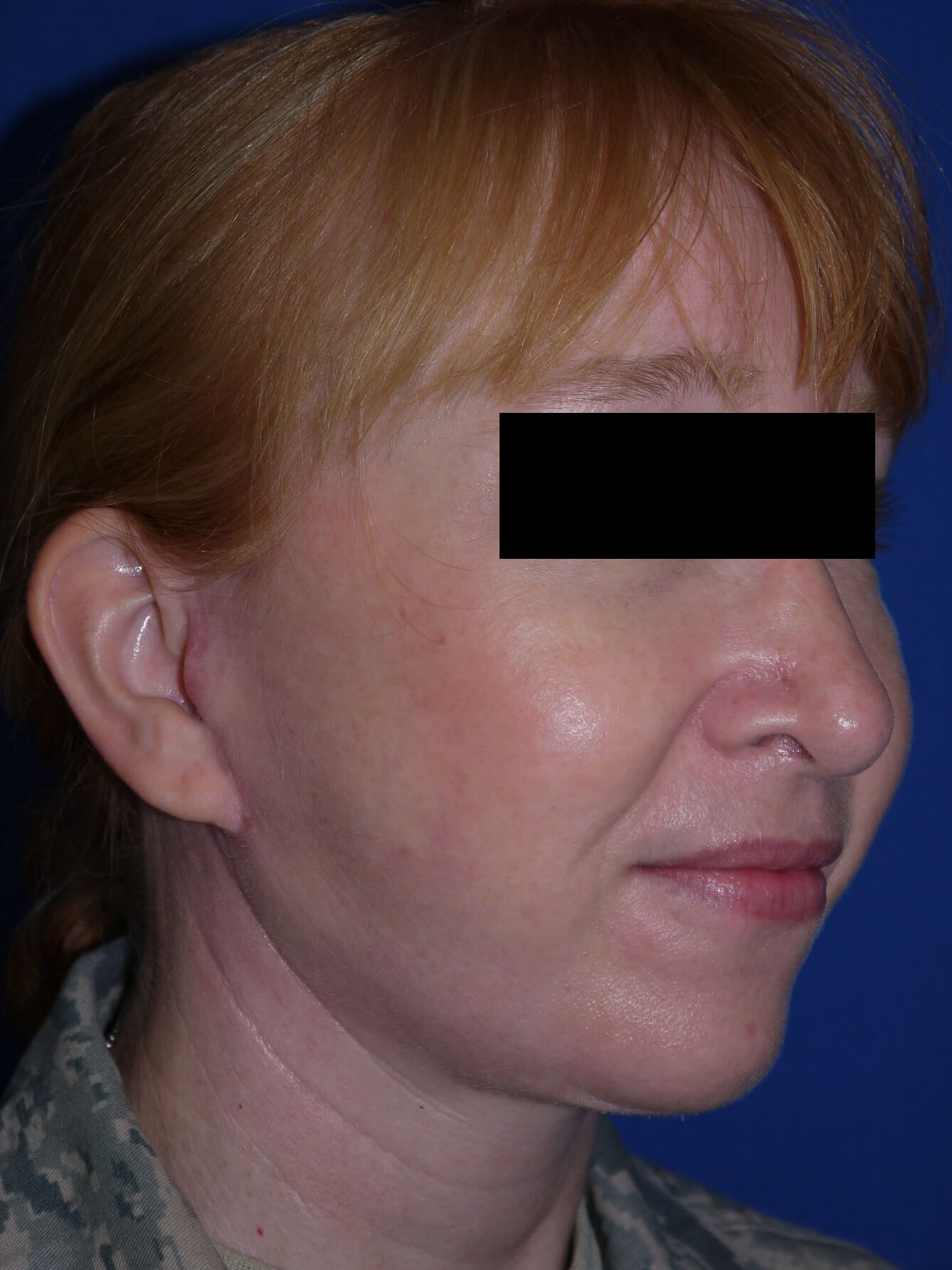 Facelift after - Right Oblique View
