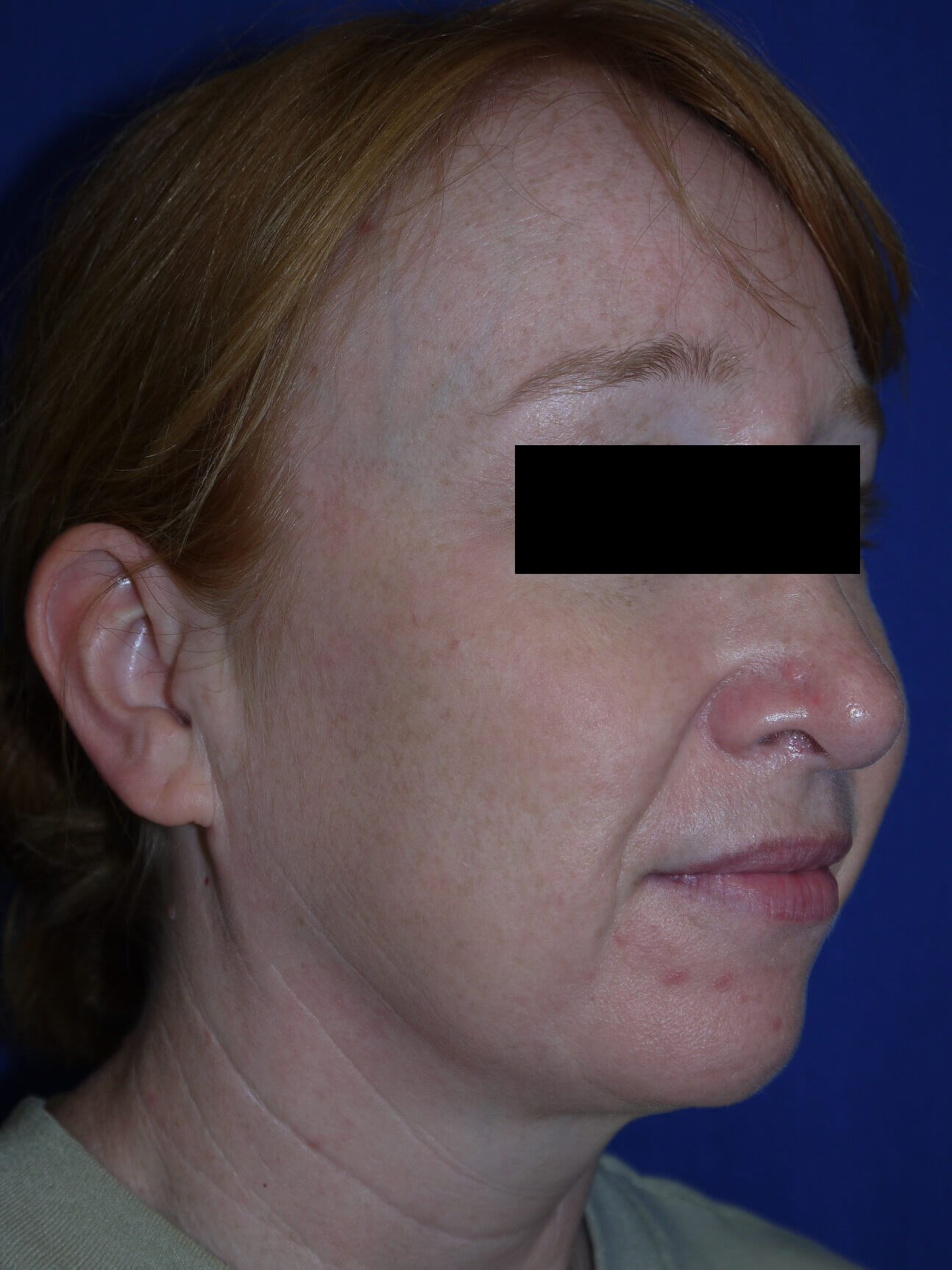 Facelift Before - Right Oblique View