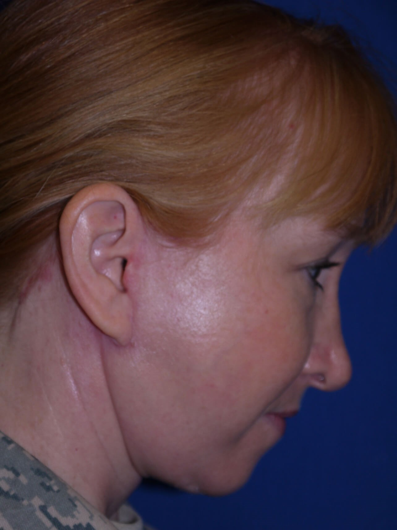 Facelift after - Right Neck View