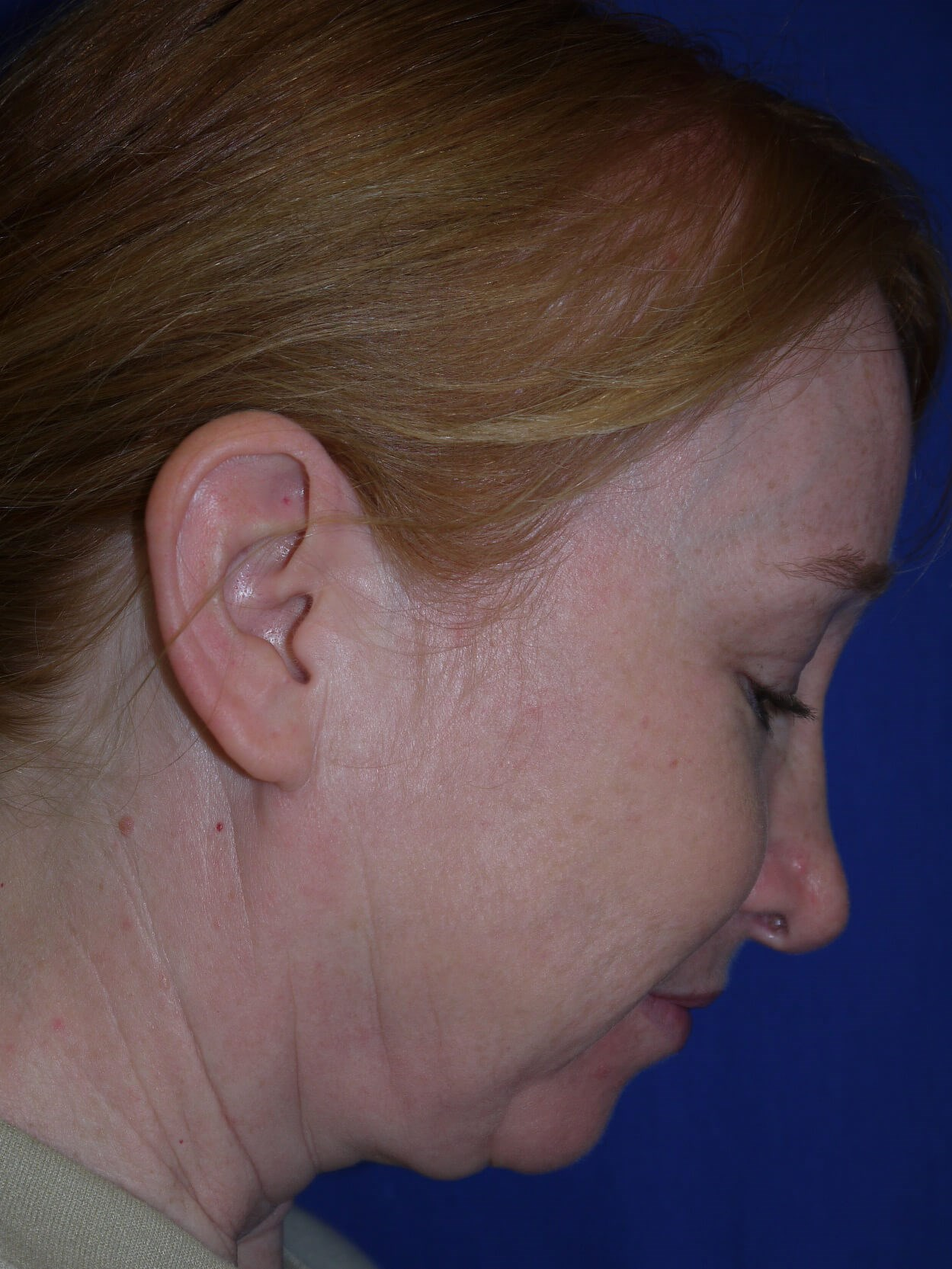 Facelift Before - Right Neck View