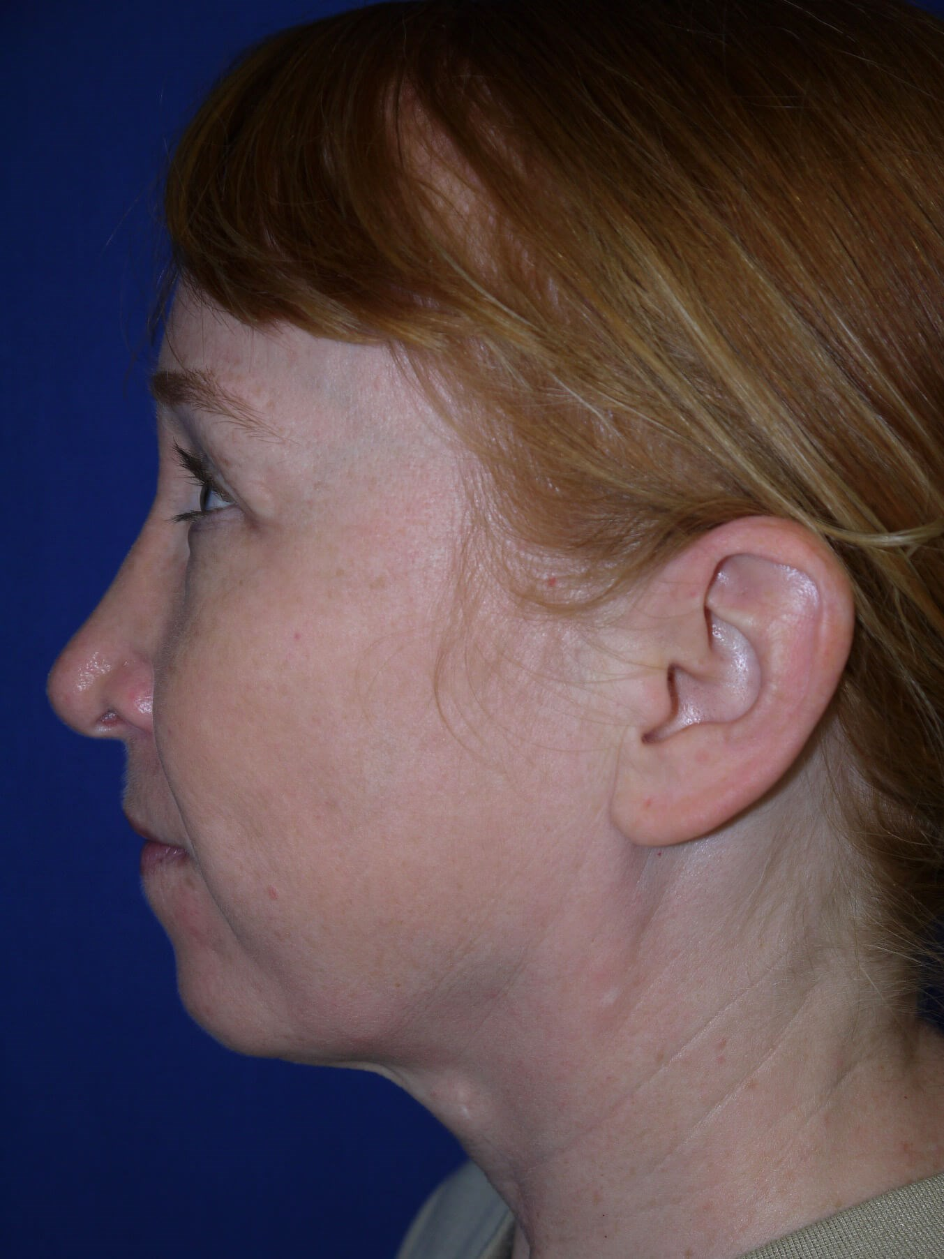 Facelift Before - Left View
