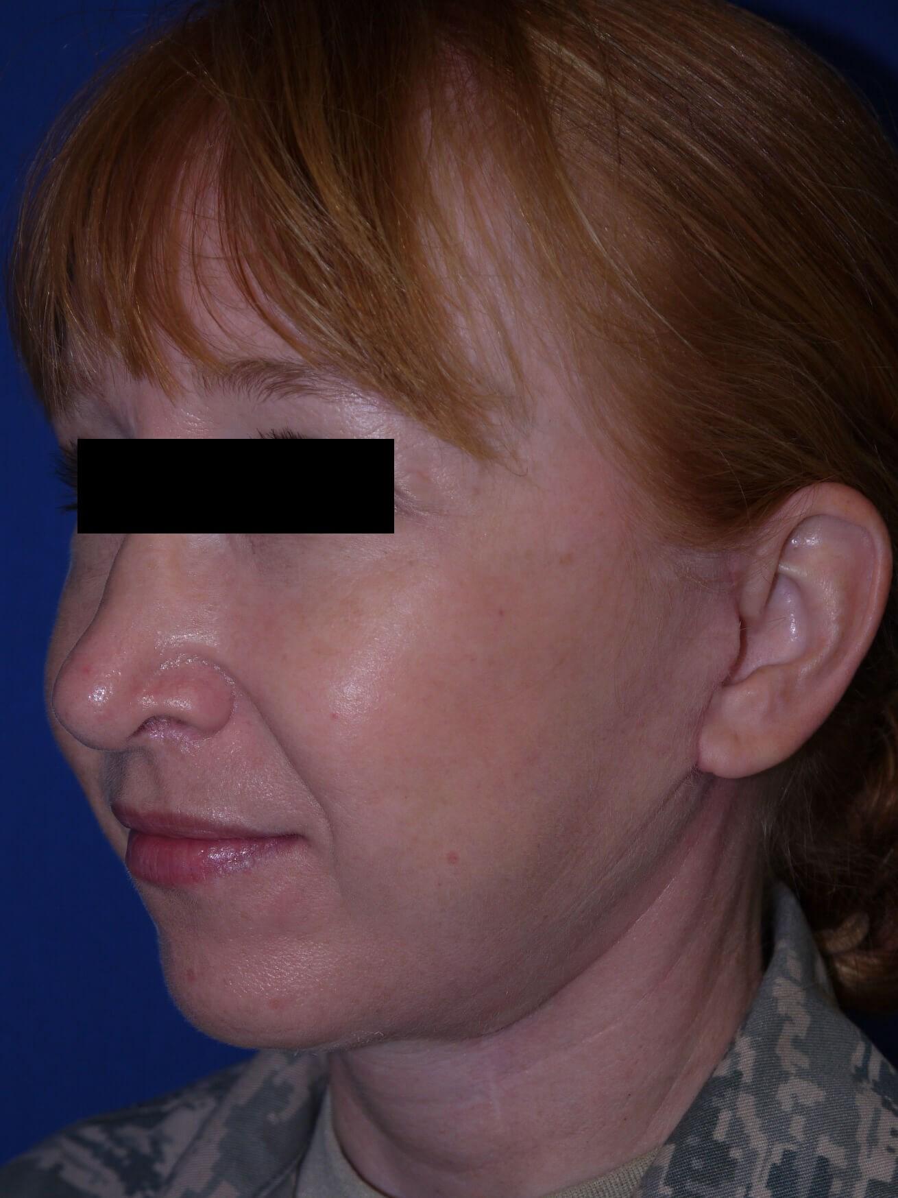Facelift after - Left Oblique View