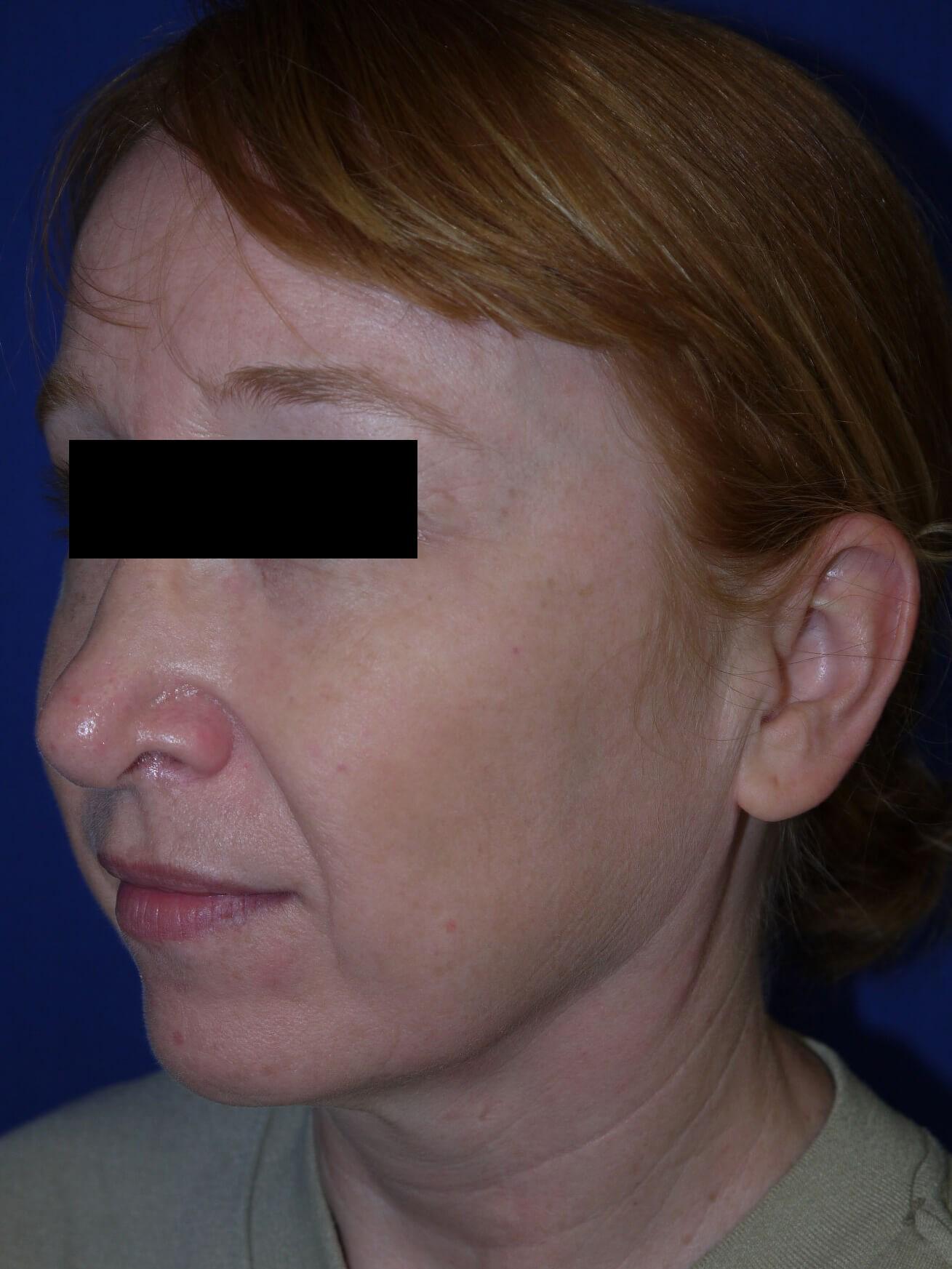 Facelift Before - Left Oblique View