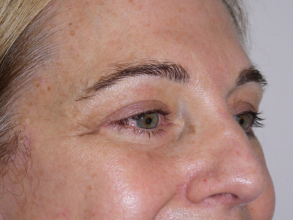 Blepharoplasty after - Right Oblique View