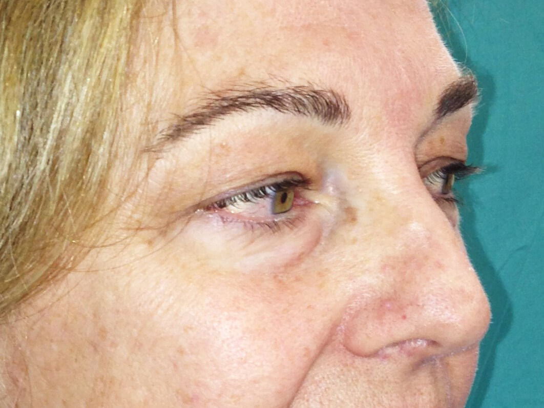 Blepharoplasty before - Right Oblique View