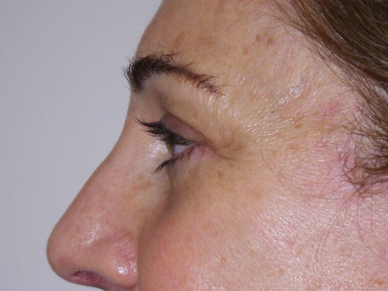 Blepharoplasty after - Left Side View