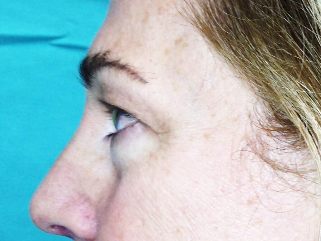 Blepharoplasty before - Left Side View