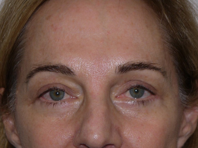 Blepharoplasty after - Front View
