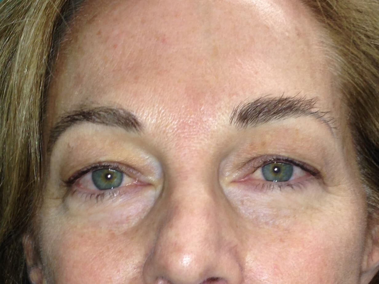 Blepharoplasty before - Front View
