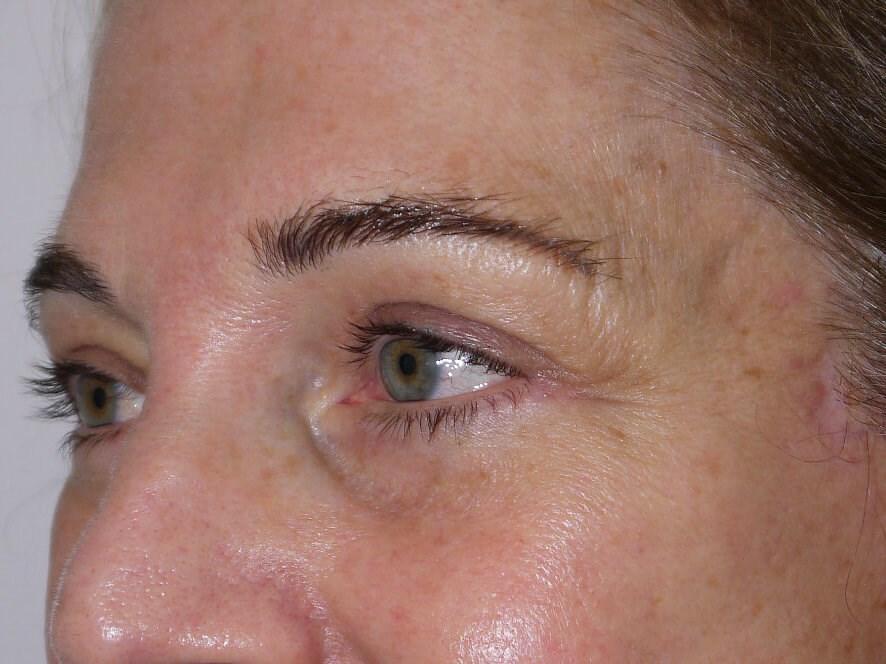 Blepharoplasty after - Left Oblique View